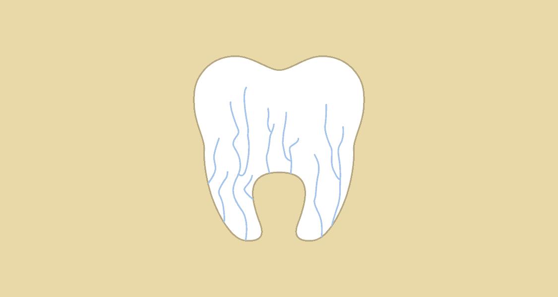 Illustration af isninger i tand