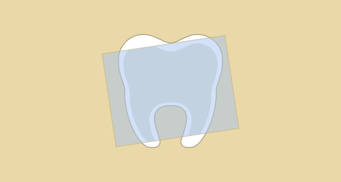 Tandlægehuset Brønderslev - Behandling 11 Røntgenbilleder