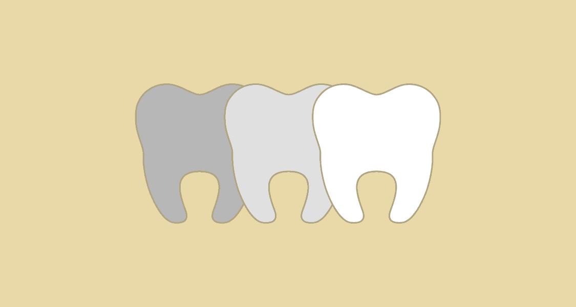 Tandlægehuset Brønderslev - Behandling 14 Tsandblegning