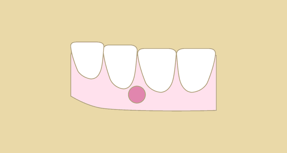 Tandlægehuset Brønderslev - Behandling 17 Tandbyld