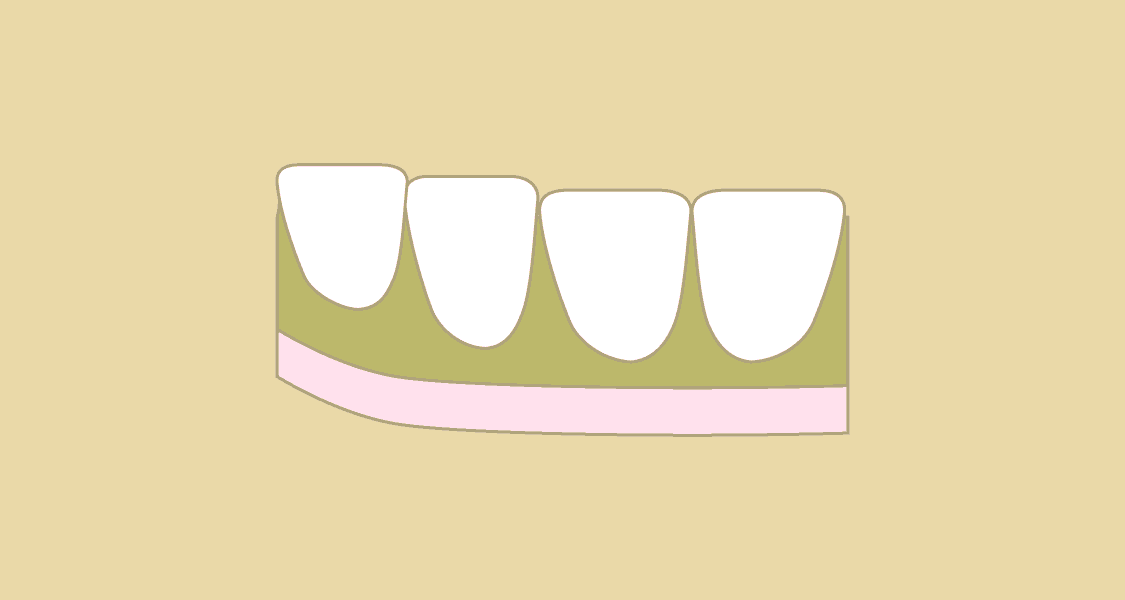 Illustration af tandkødsbetændelse