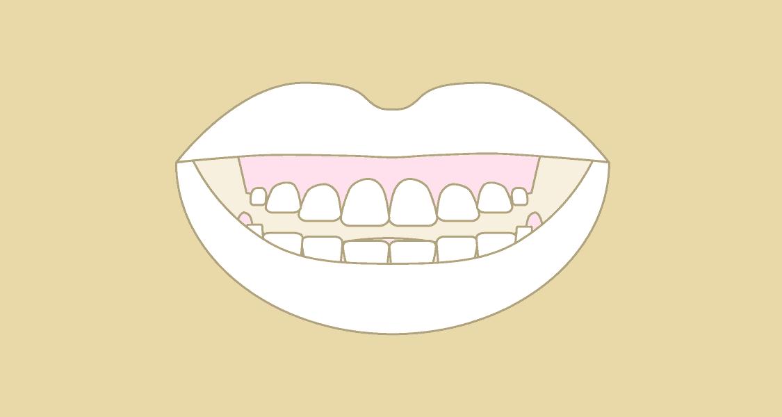 Illustration af tandkødssmil