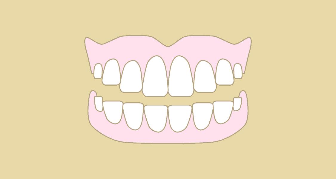 Illustration af tandproteser